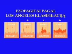 Ezofagitai (stemplės pažeidimas) pagal LOS ANGELES klasifikaciją